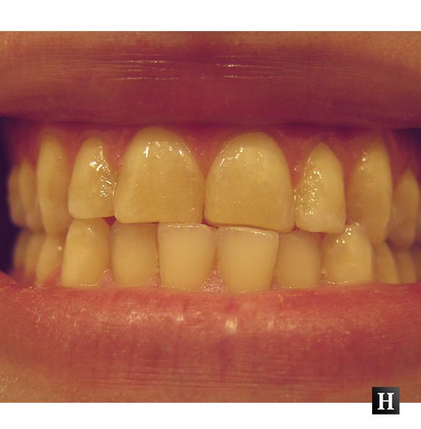 De ce se ingalbenesc dintii