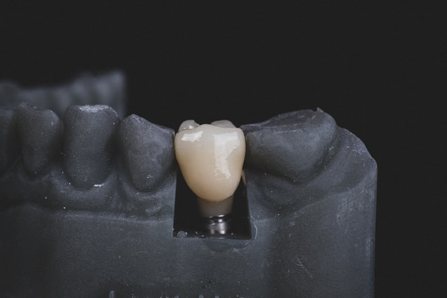 implant dentar Fast & Fixed